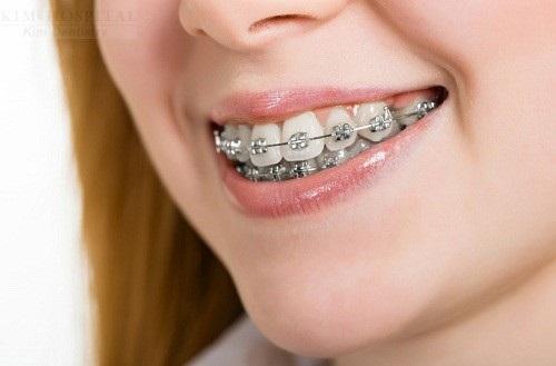 Phục hình răng cửa