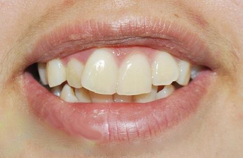 Phục hình răng cửa 2