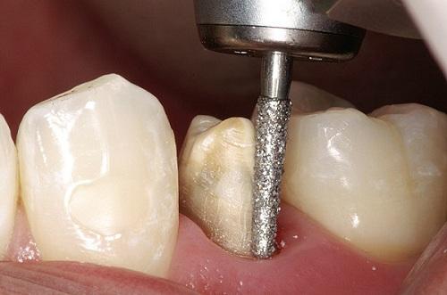 Quá trình mài răng 2
