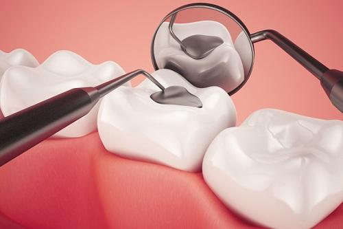 Răng khôn có trám được không