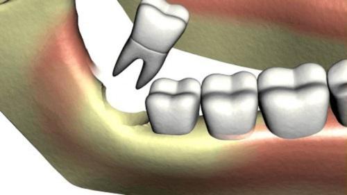 Răng khôn có trám được không 2