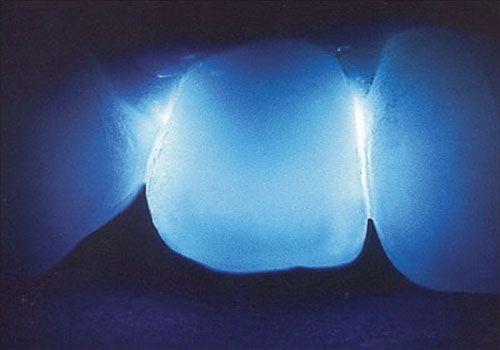 Răng sứ cercon là gì 2
