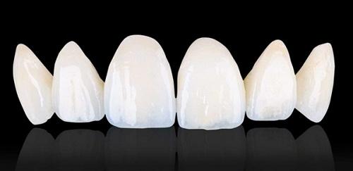 Răng sứ cercon sử dụng được bao lâu