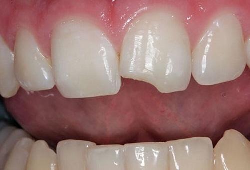 Cách khắc phục răng bị mẻ