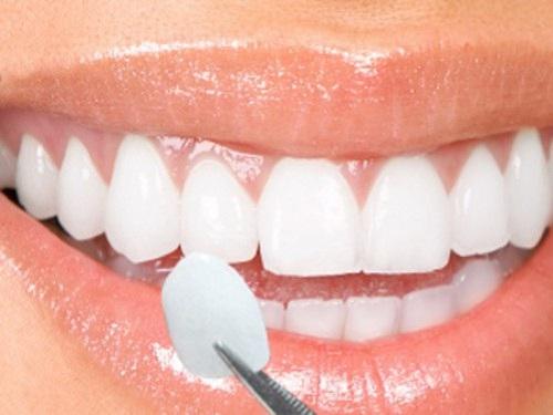 Cấy răng khểnh 2