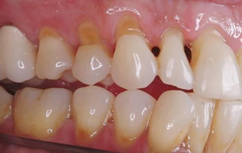 Khi nào nên hàn răng