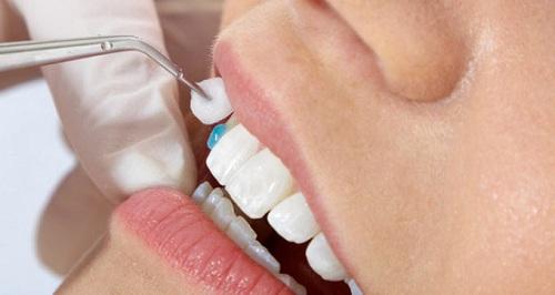 Tạo răng khểnh 2