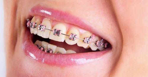 Vẩu hai răng cửa