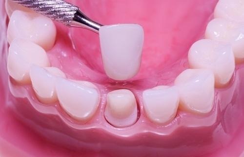 Trị răng thưa 2