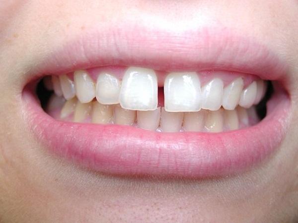 Kết quả hình ảnh cho Kết quả điều trị có thể khác nhau răng