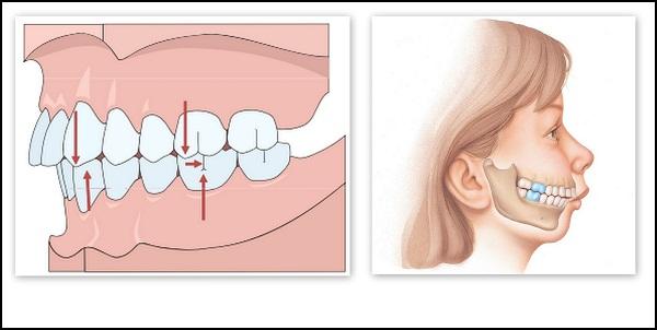 <center>Hình ảnh răng bị hô nhẹ<center>
