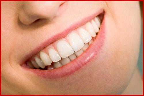 Làm hàm răng trên đẹp hơn