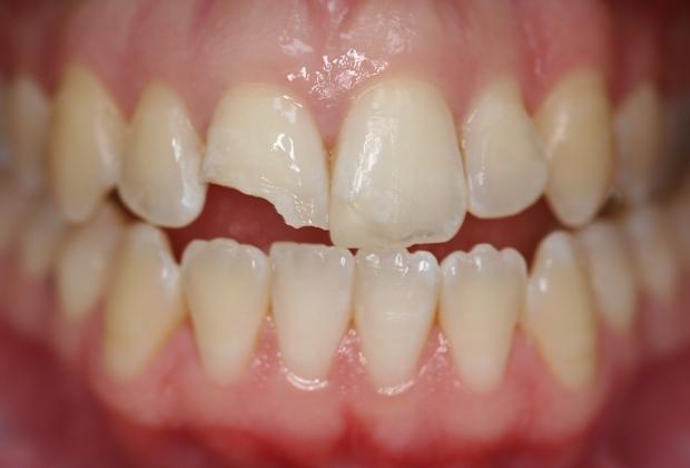 Răng bị sứt mẻ, sâu chưa vào đến tủy
