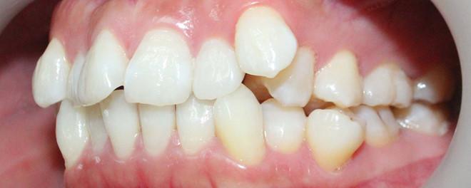 Răng mọc chen nhau