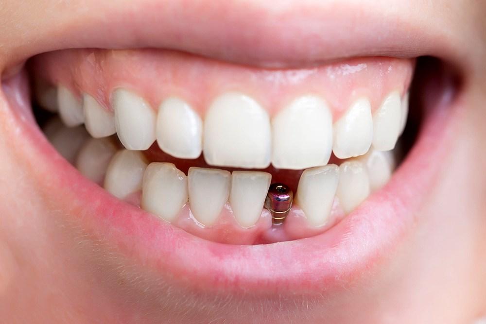 Tìm hiểu thẩm mỹ nướu trong implant