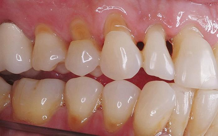 Gây mòn răng