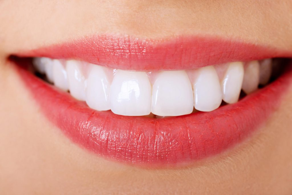 Làm răng phủ sứ