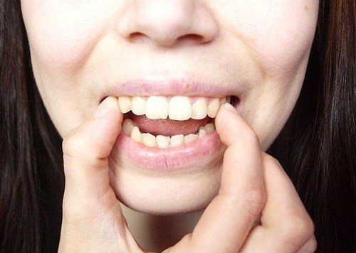 Răng hô có tính di truyền hay không?