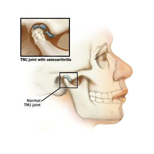 Tổn thương thái dương và cơ hàm khi nghiến răng