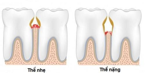 Thói quen xỉa răng ảnh hưởng ra sao tới sức khỏe răng miệng