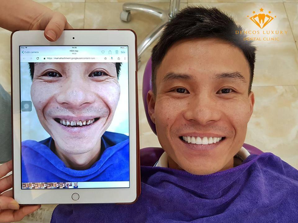 bọc răng sứ tốt không