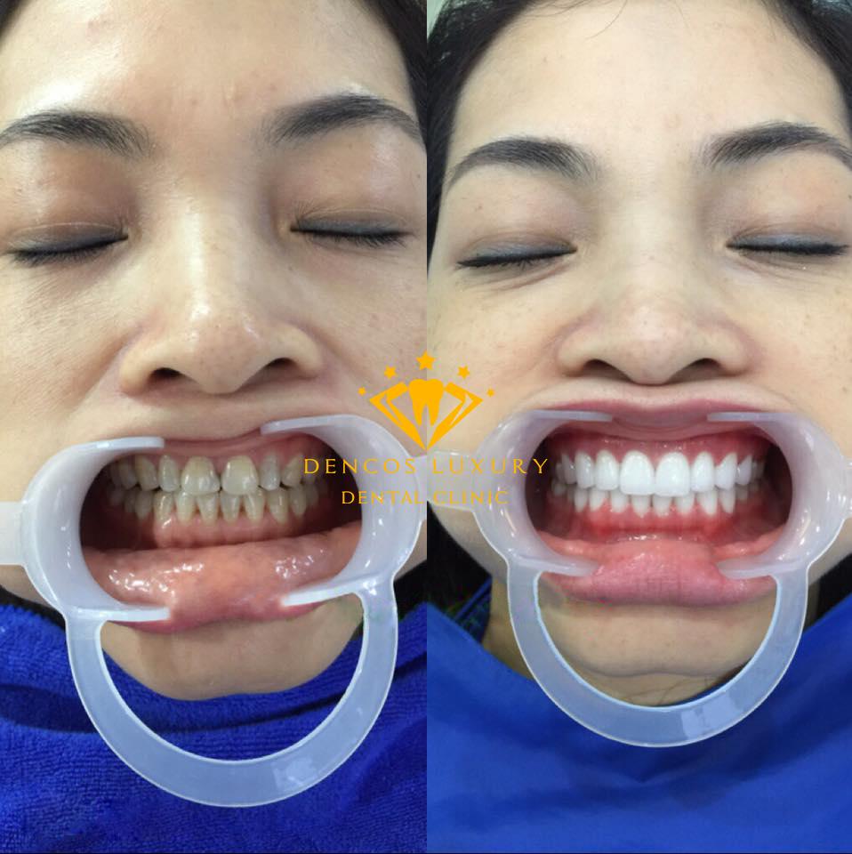 làm răng sứ vĩnh viễn