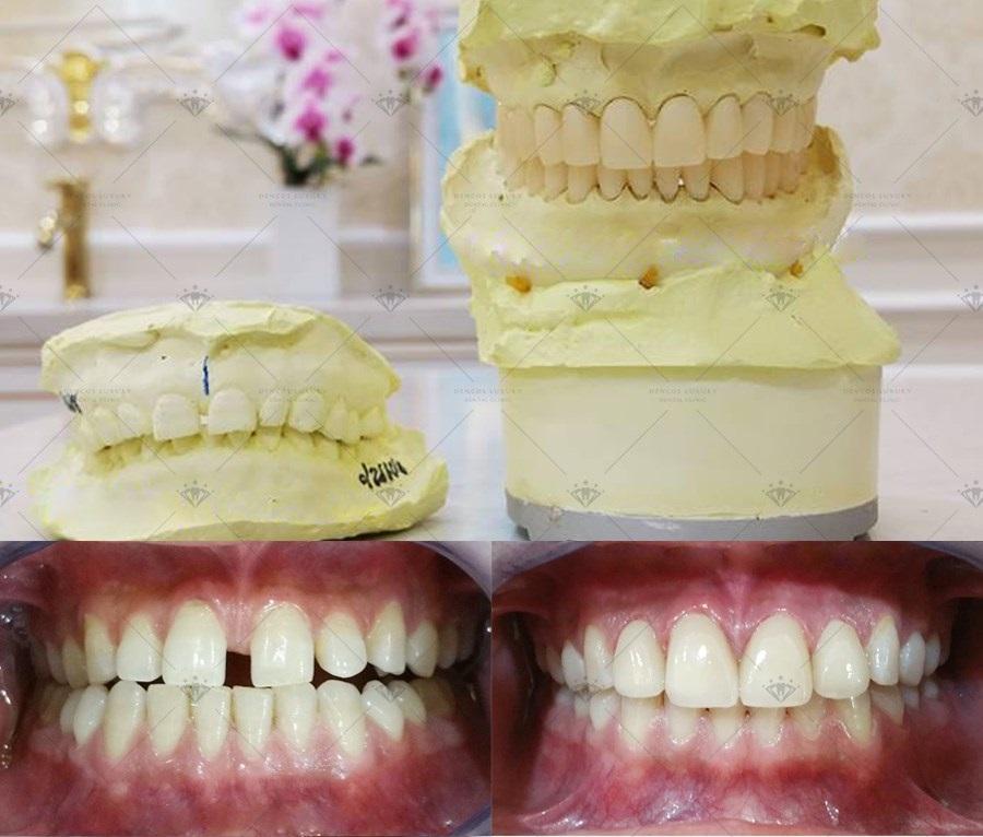 Làm răng sứ 4 cái răng cửa