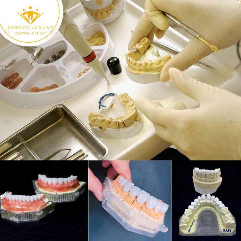làm răng sứ nha khoa