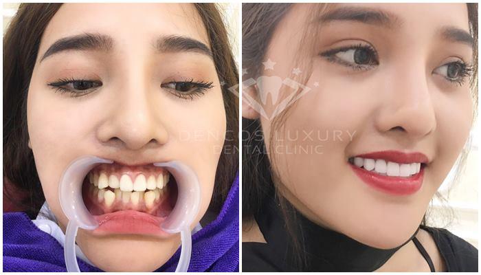 làm răng sứ là sao