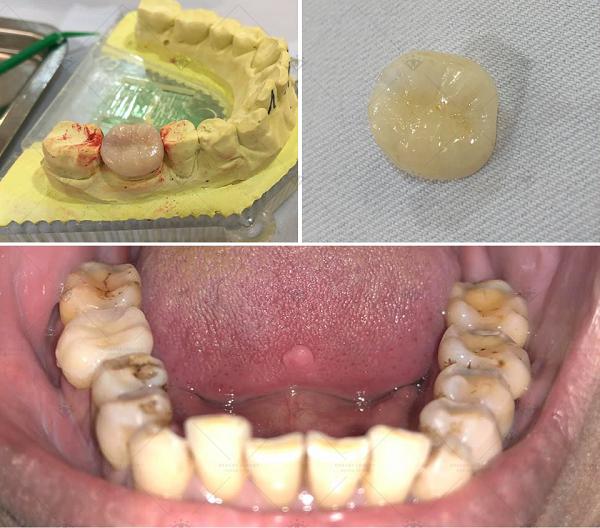 Làm răng sứ cho răng hàm