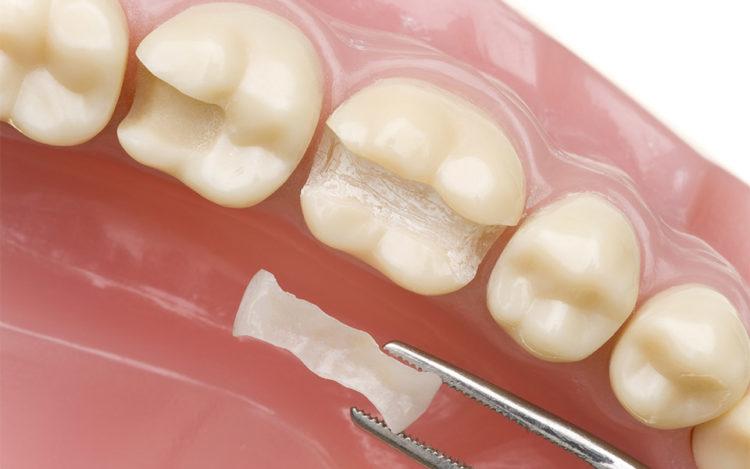 Trám răng có tốt không?