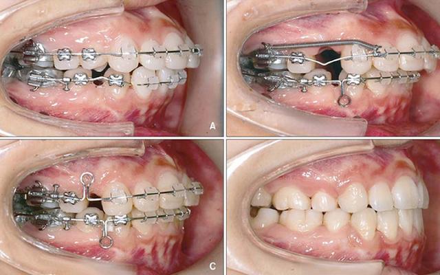 Niềng răng mắc cài nào nhanh nhất?