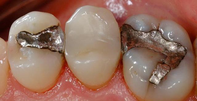 Quy trình hàn trám răng thẩm mỹ