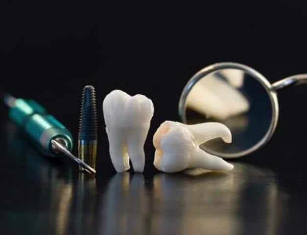 Trồng răng implant không nên ăn gì ?
