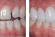 Bọc răng sứ cercon có những ưu nhược điểm nào? << XEM NGAY
