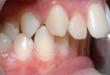 Giải pháp cho răng hơi hô có nên niềng không?