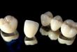 Bọc răng sứ titan có tốt không và độ bền răng sứ titan như thế nào?