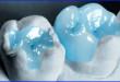 Trám răng có đau không? Bác sĩ nha khoa tư vấn