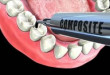 Quy trình hàn răng sâu như thế nào mới là chuẩn Hoa Kỳ?
