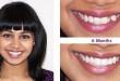 Cấy răng khểnh – nên hay không?