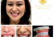Làm răng sứ cố định bao nhiêu tiền? Cập nhật bảng giá MỚI nhất
