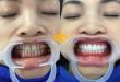 Làm răng sứ vĩnh viễn có giá bao nhiêu? – Thông tin cập nhất mới nhất