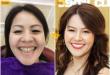 Làm răng sứ đẹp nhất Hà Nội – Địa chỉ được nhiều người lựa chọn