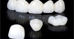 Làm răng sứ TITAN có ưu và nhược điểm gì ?