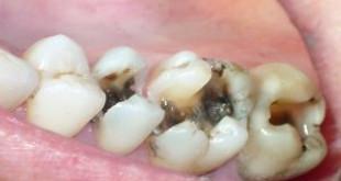 Những nguyên nhân bị sâu răng ai cũng phạm phải