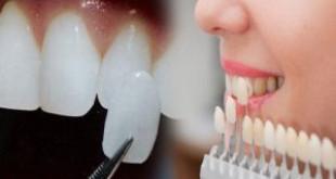 Dán răng sứ thẩm mỹ – Giải pháp cho hàm răng trắng đẹp tự nhiên nhất