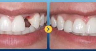 Có nên làm cầu răng trong trường hợp mới bị mất răng?
