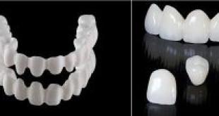 Chụp răng sứ venus có tốt không?  >>> Chuyên gia giải đáp