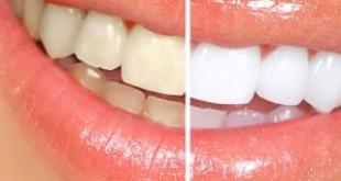 Tác dụng của phương pháp làm răng sứ thẩm mỹ
