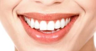 Những mẹo làm trắng răng bằng baking soda khiến bạn bất ngờ